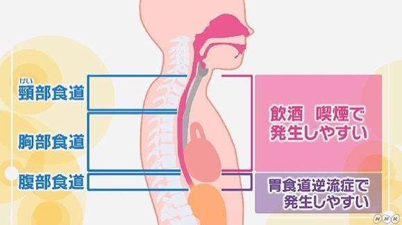する 喉 スースー なんともいえない喉の違和感