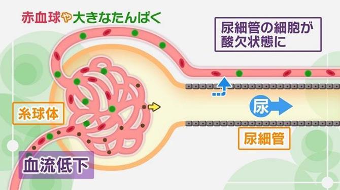 NHK健康チャンネルで確かな医療・健康情報を脱水と薬に注意!危険な「急性腎障害」 の症状と対策とは